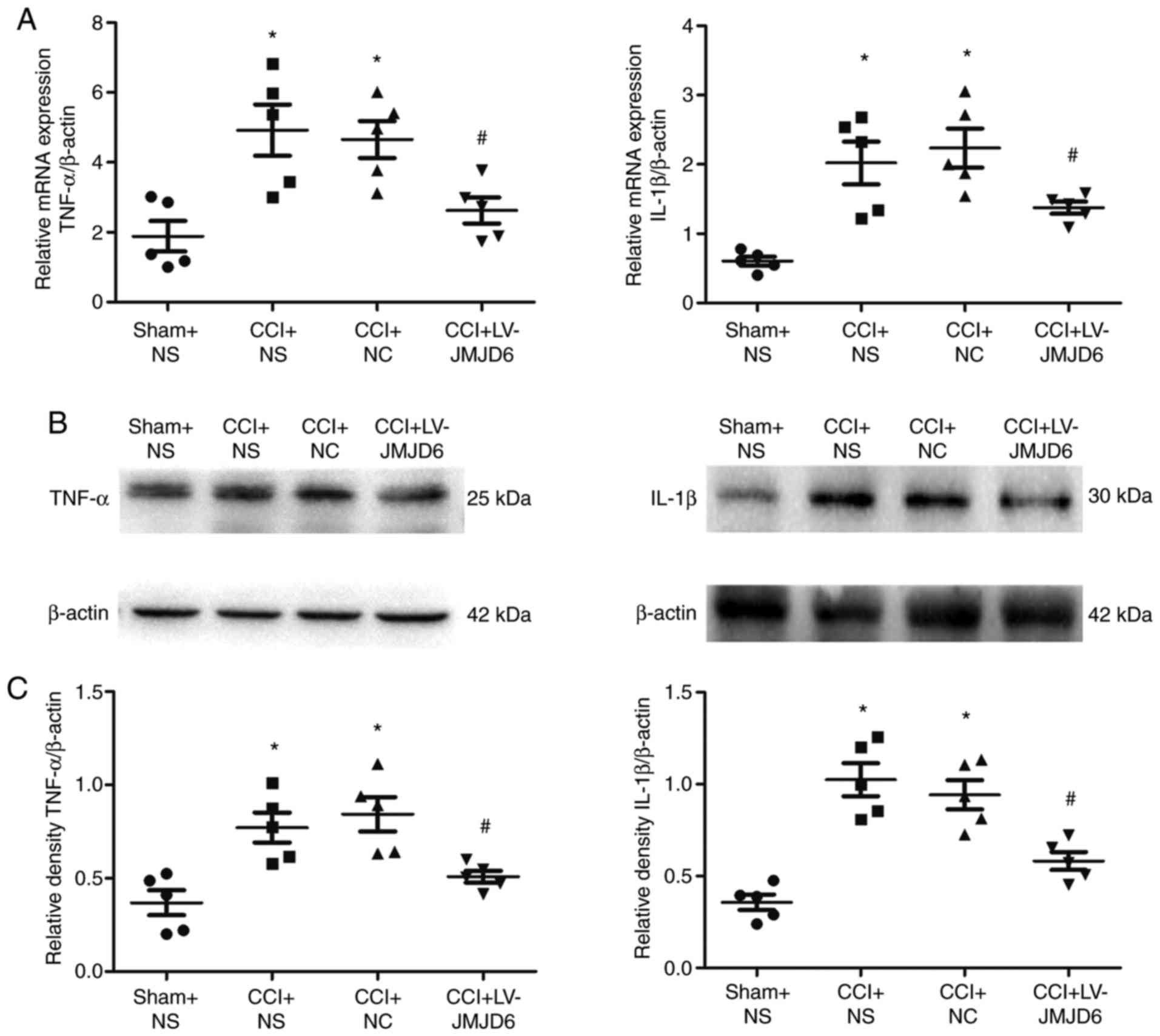 JMJD6 exerts function in neuropathic pain by regulating NF