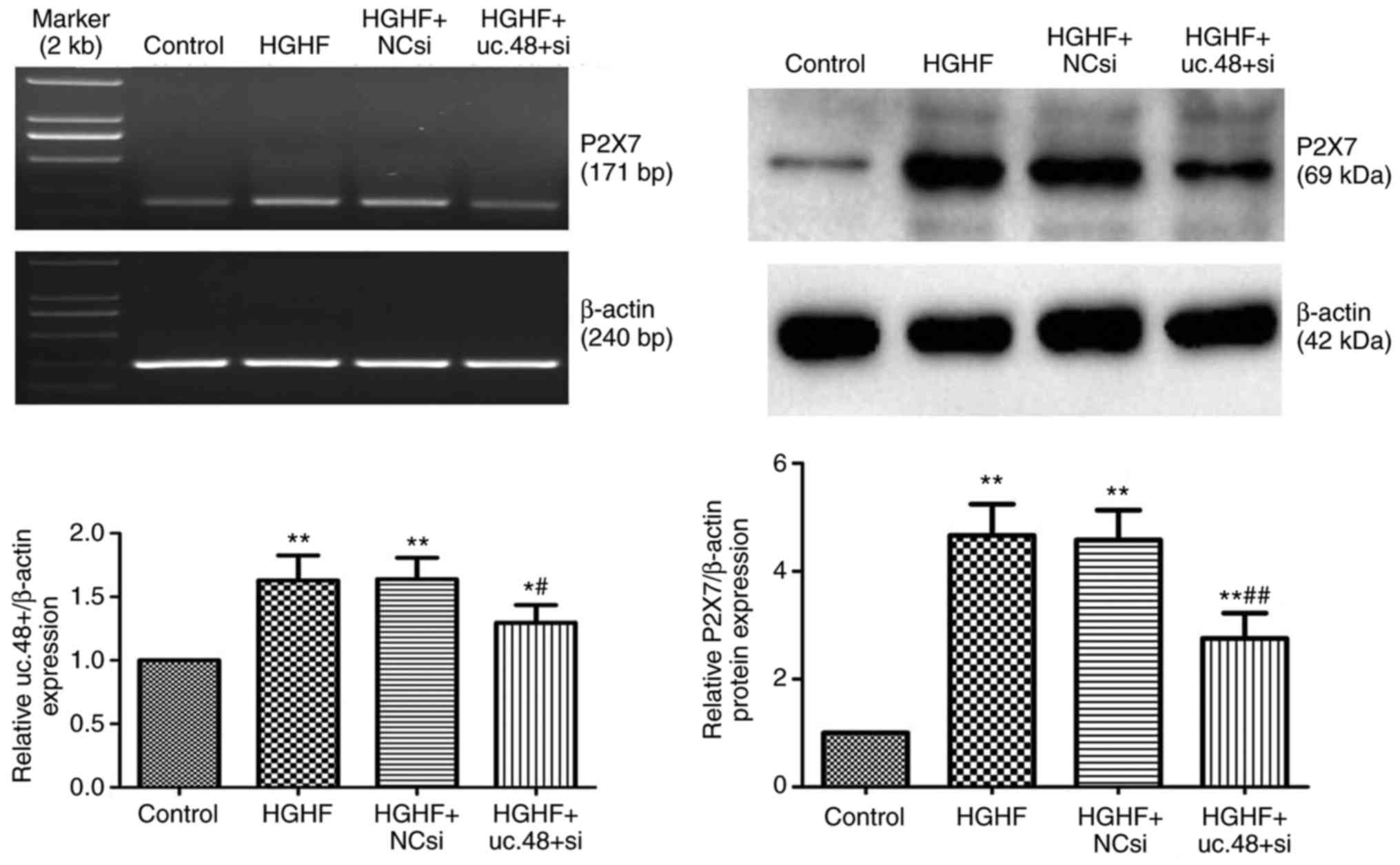 Lncrna Uc48 Is Involved In The Diabetic Immune And