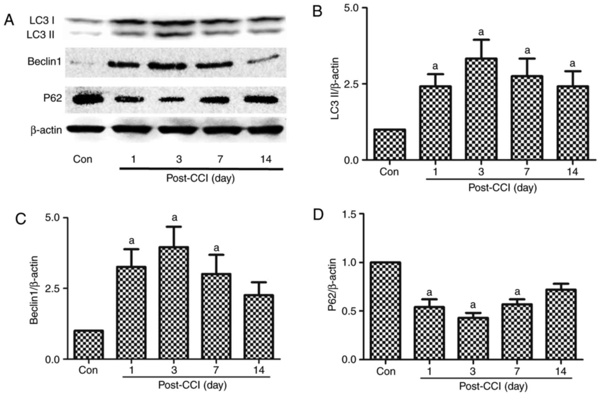 Effect Of Autophagy On Allodynia Hyperalgesia And Astrocyte Cambridge 302 Wiring Diagram Figure 1 Expression The Related Proteins Lc3ii Beclin P62 In Spinal Dorsal Horn Rats With Neuropathic Pain
