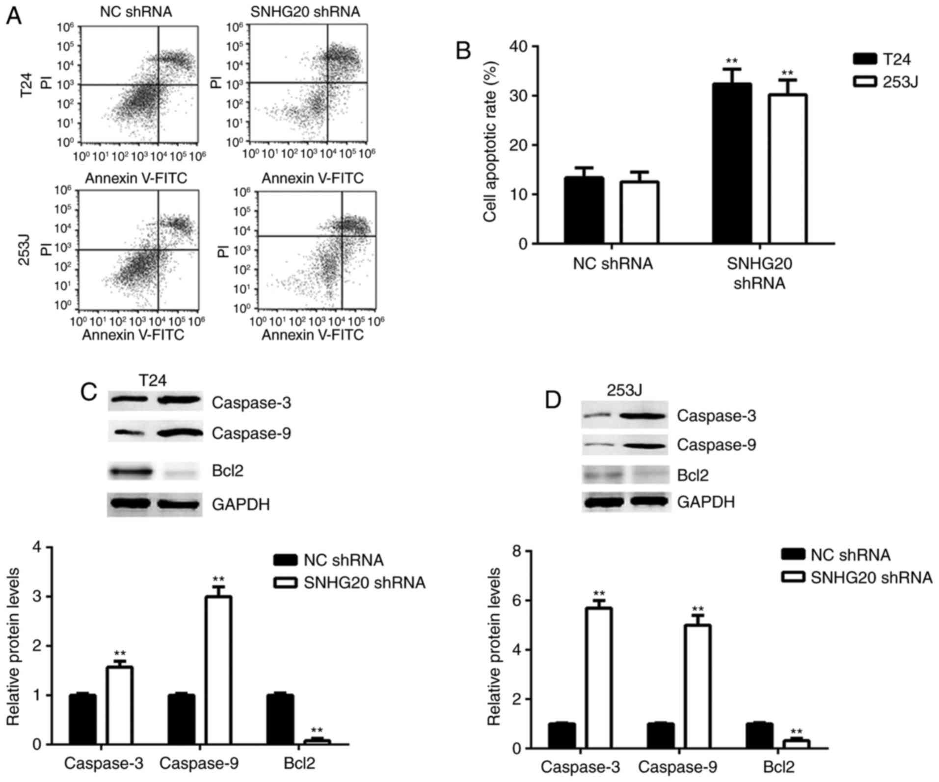 Long non-coding RNA HULC promotes bladder cancer cells