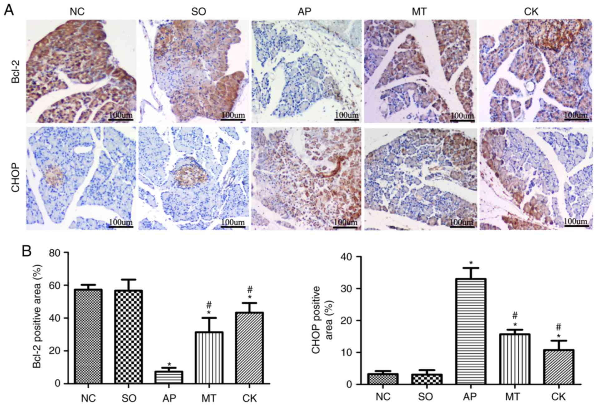 Melatonin attenuates the inflammatory response via