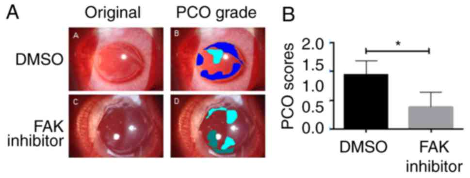 The role of focal adhesion kinase in transforming growth factor-β2