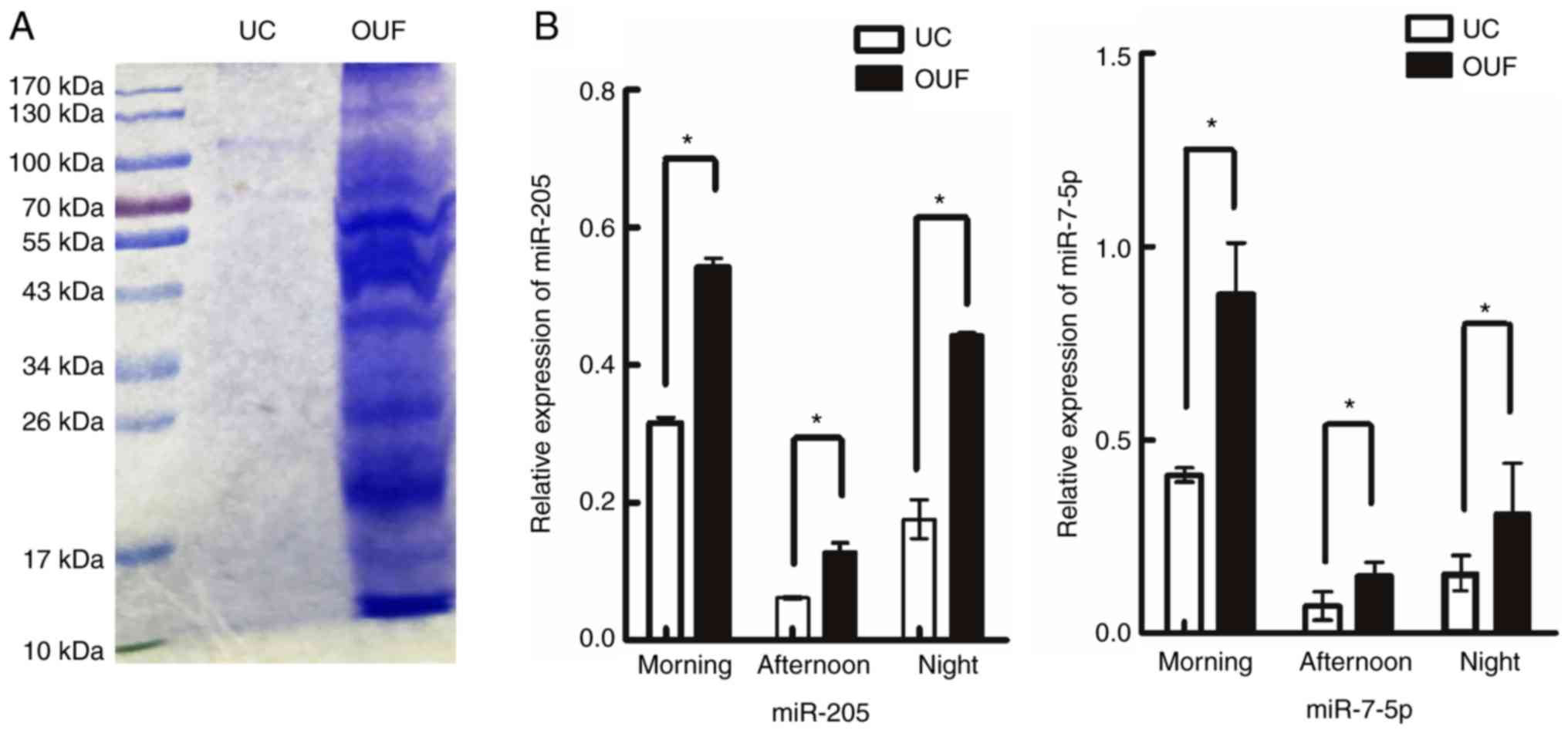 A highly efficient method for isolating urinary exosomes