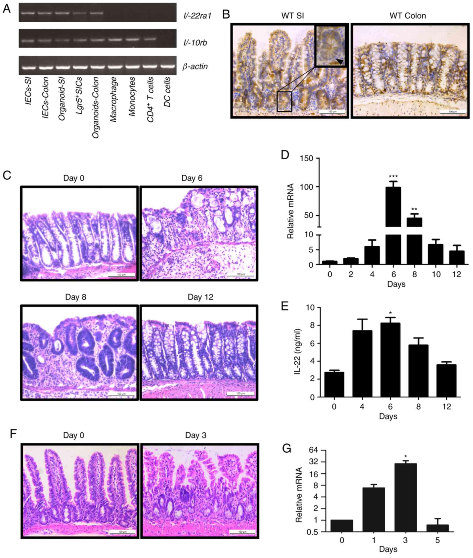 Interleukin‑22 regulates the homeostasis of the intestinal