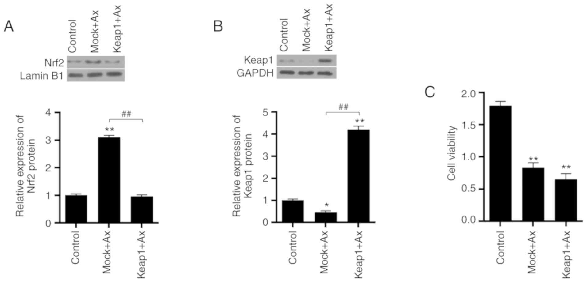 Downregulation of Keap1 contributes to poor prognosis and
