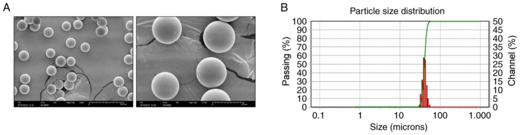 Development Of Finasteride Polymer Microspheres For Systemic Application In Androgenic Alopecia