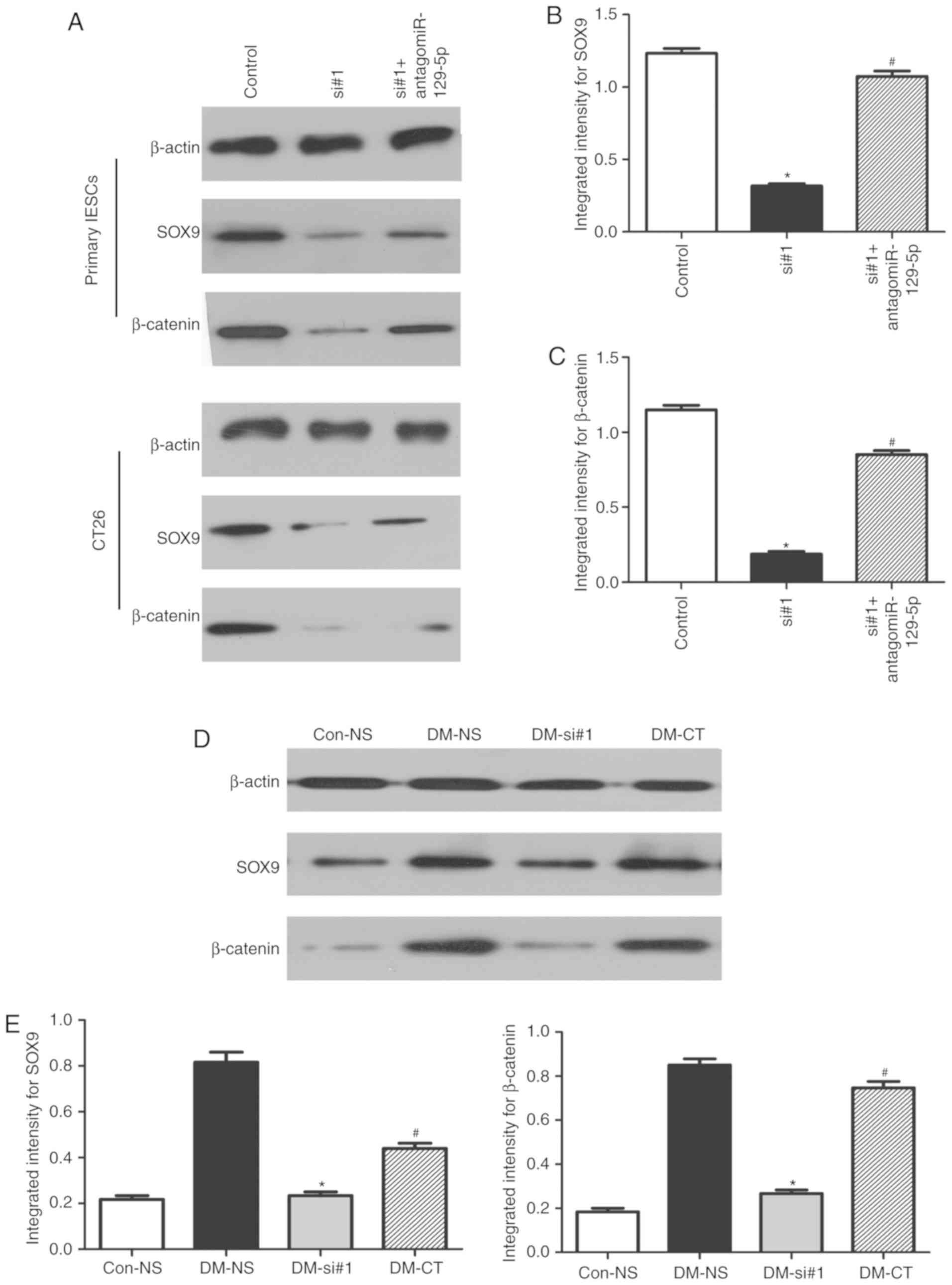 Downregulation Of Lncrna Malat1 Suppresses Abnormal Proliferation