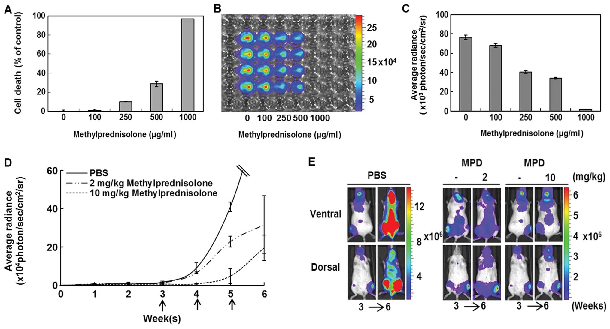 establishment of a bioluminescent imaging based in vivo leukemia(e), bioluminescent leukemia responses in control mouse and to 2 and 10 mg kg methylprednisolone (mpd) were evaluated by comparing images before treatment