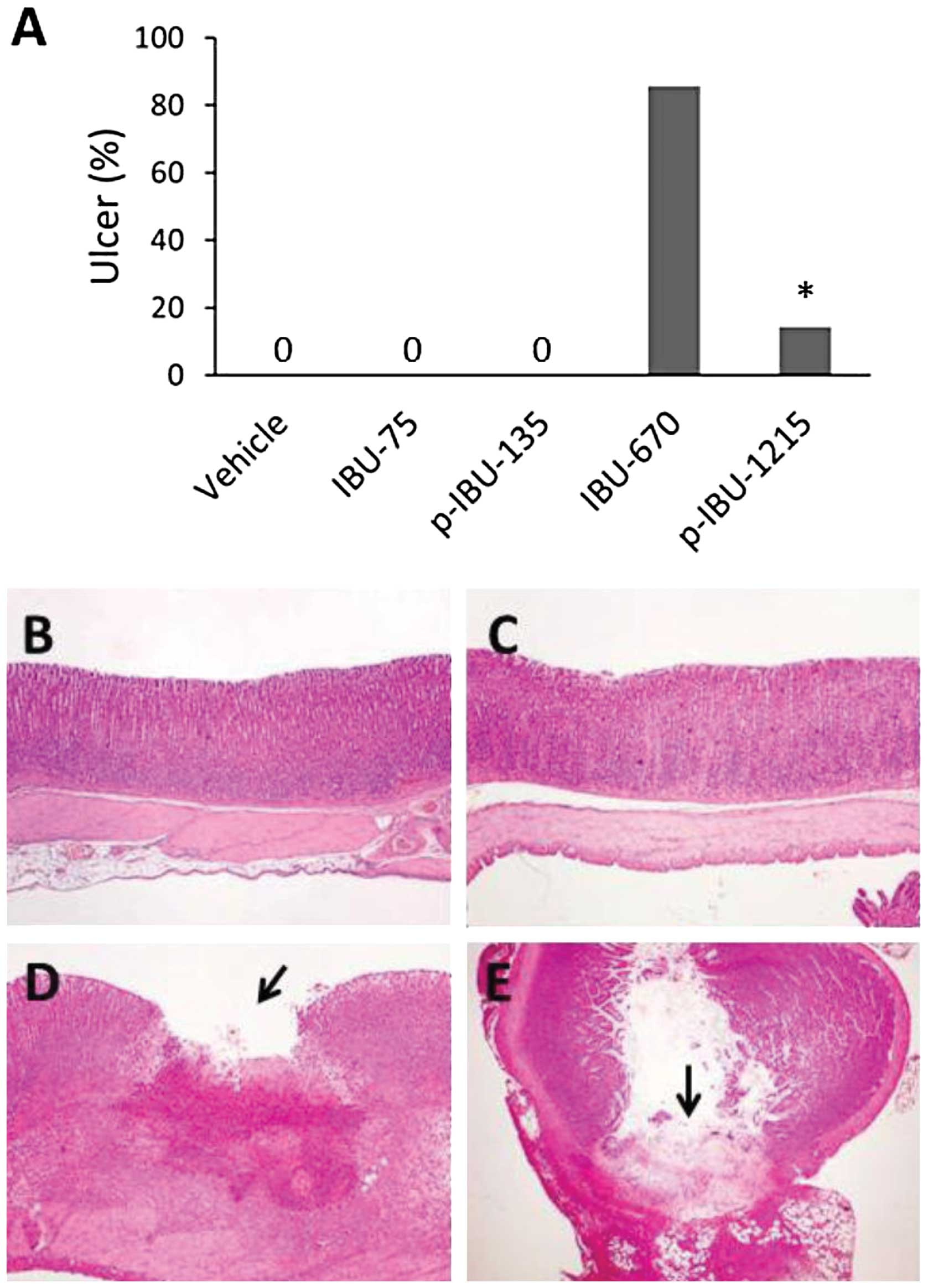 A Novel Nsaid Derivative Phospho Ibuprofen Prevents Aom Induced Colon Cancer In Rats