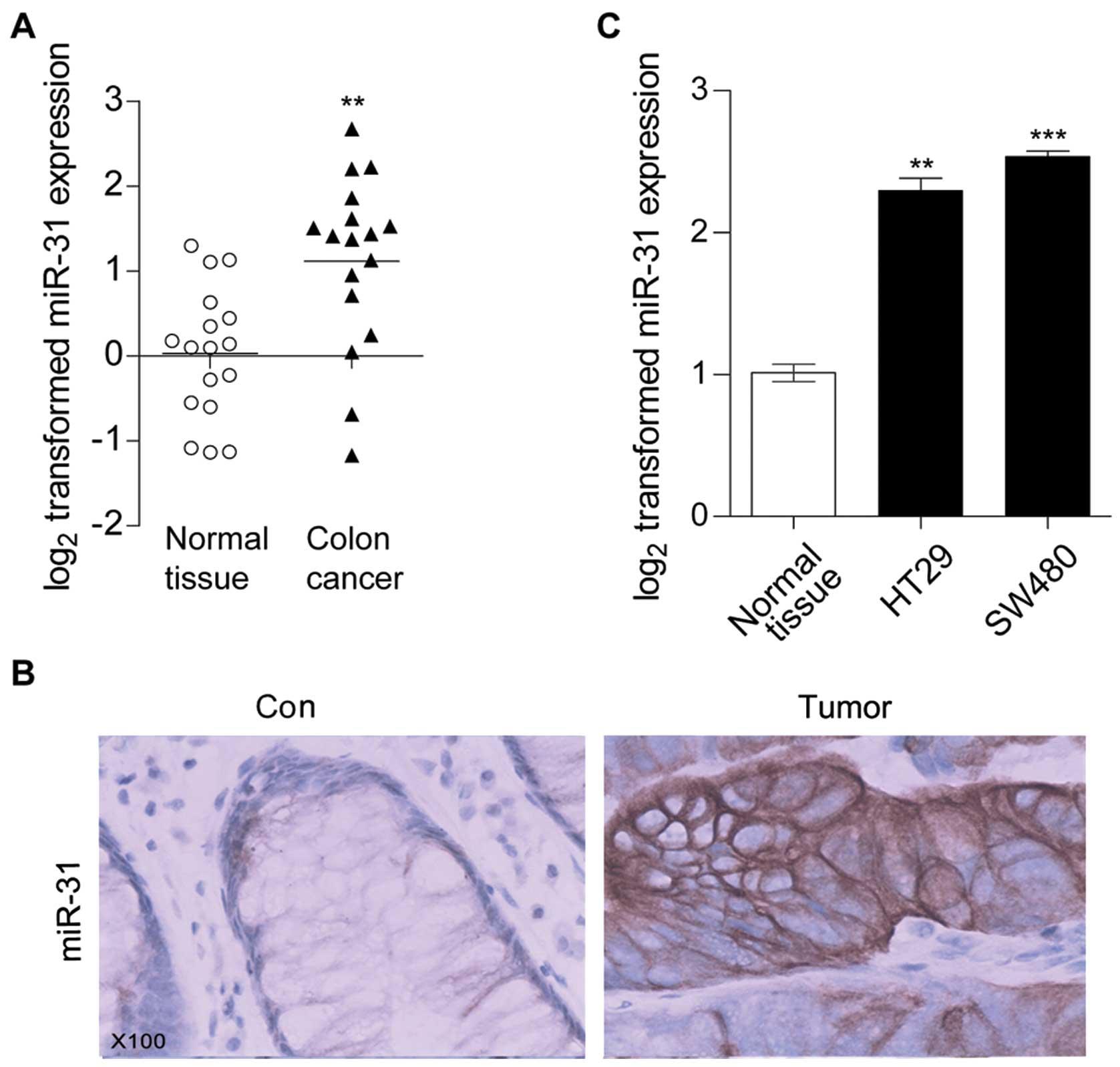 The tumor suppressor gene RhoBTB1 is a novel target of miR