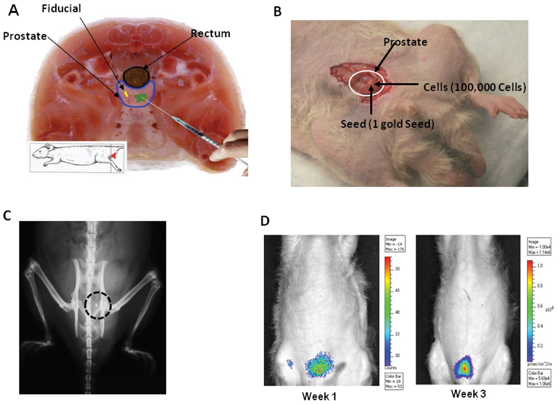 Tumor growth and lung metastasis in an orthotopic mouse