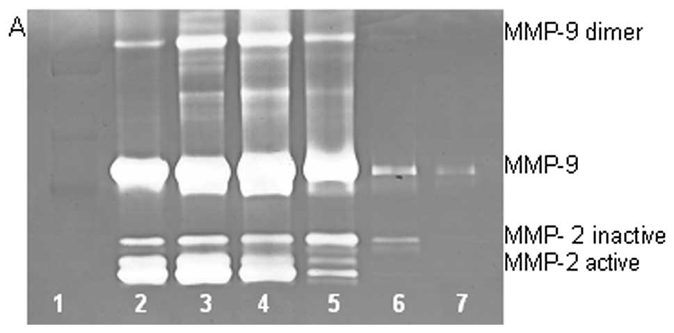 Effect Of NM On TNF Treated Chondrosarcoma SW 1353 MMP 2 And 9 Secretions Gelatinase Zymogram A Densitometry Analysis B