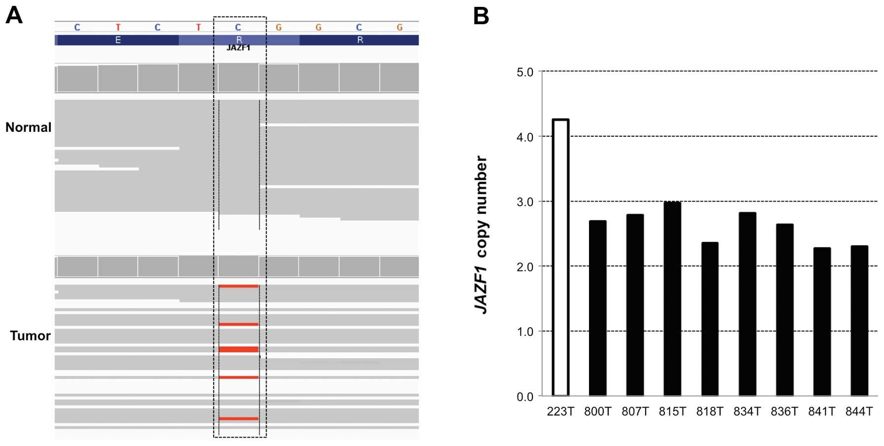 Comprehensive Genomic Analyses Of A Metastatic Colon Cancer To The Lung By Whole Exome Sequencing And Gene Expression Analysis