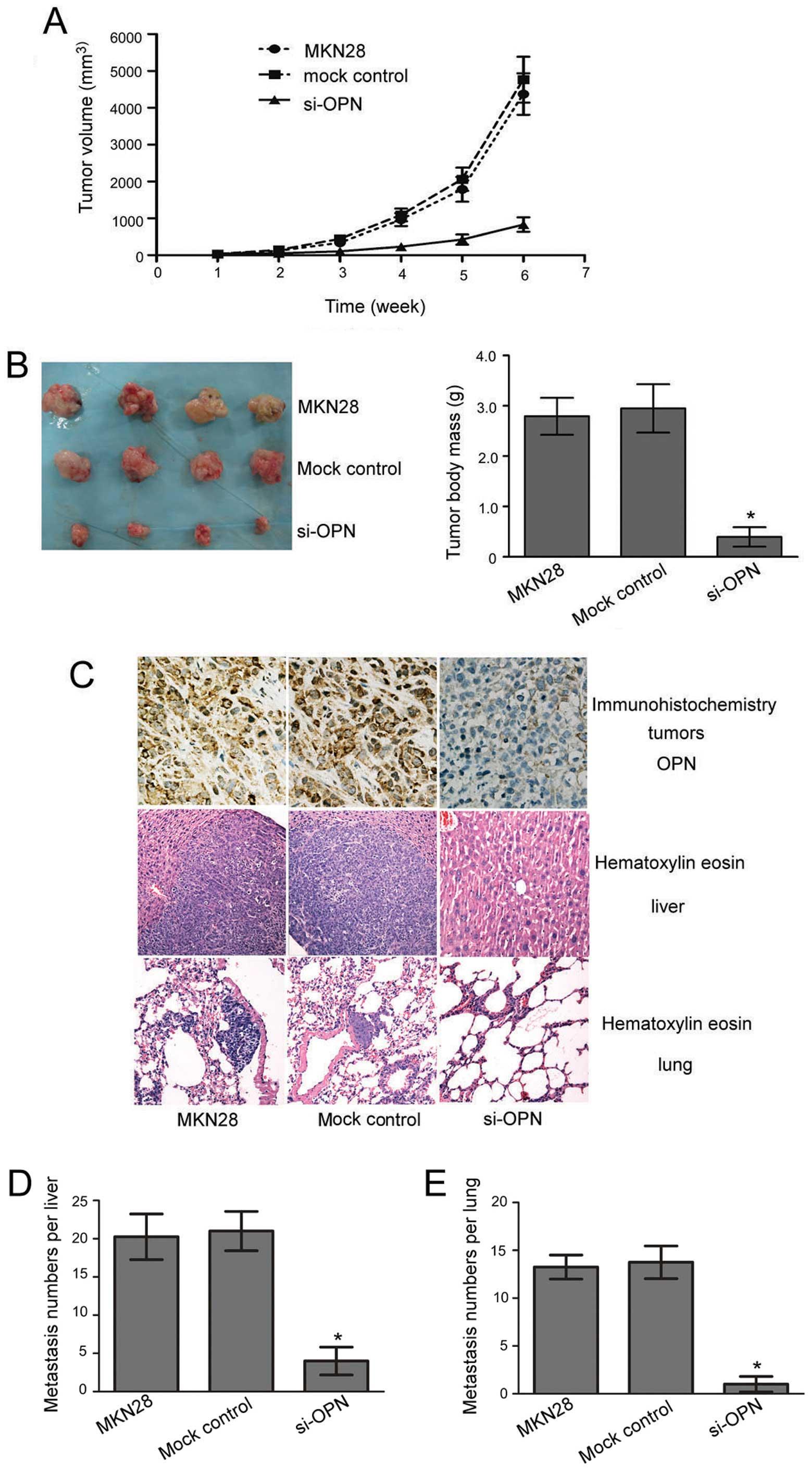 Gastric cancer xenografts, Gastric cancer xenograft mouse models, Supliment II JTMR