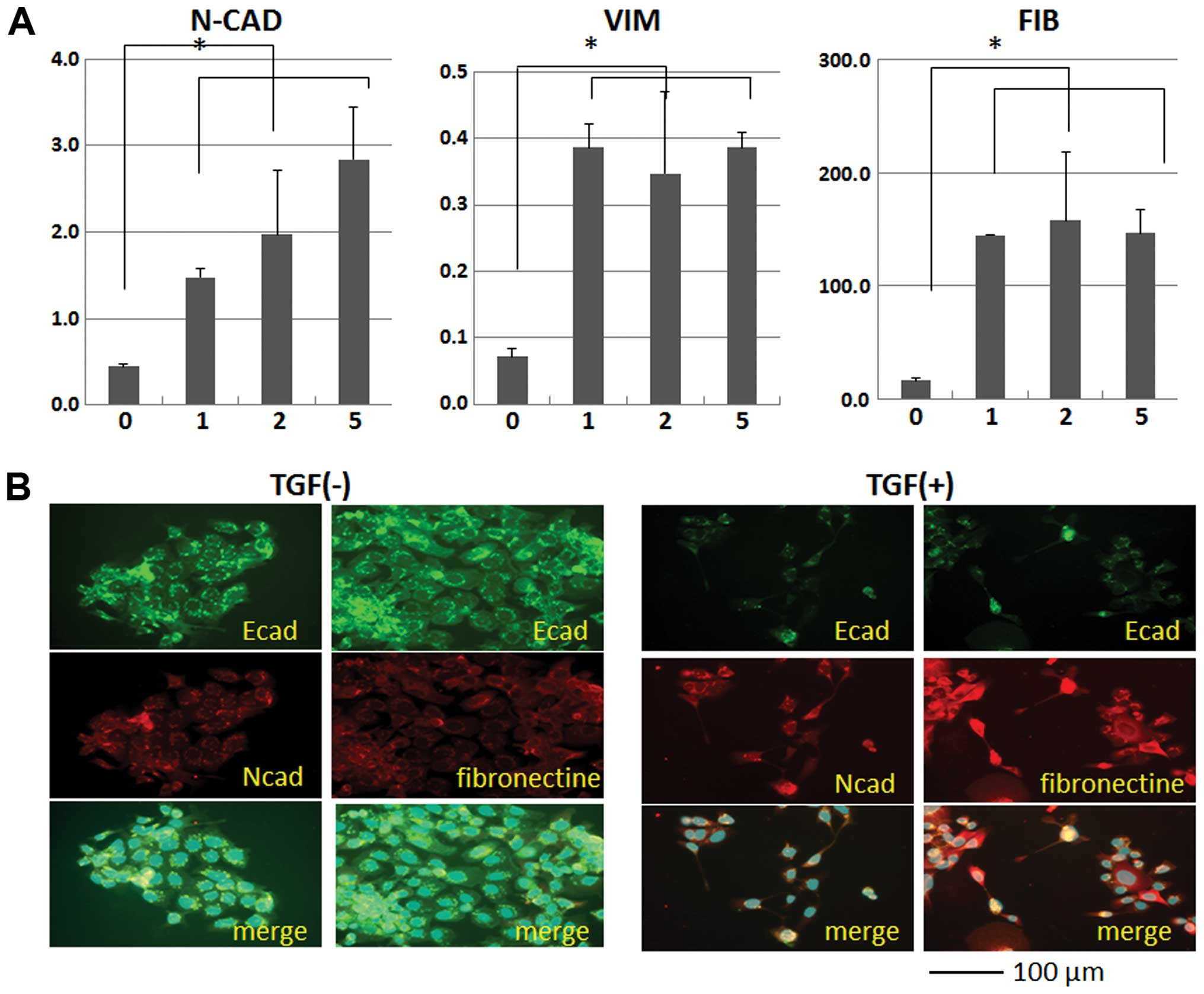 Human Colorectal Cd24 Cancer Stem Cells Are Susceptible To Epithelial Mesenchymal Transition