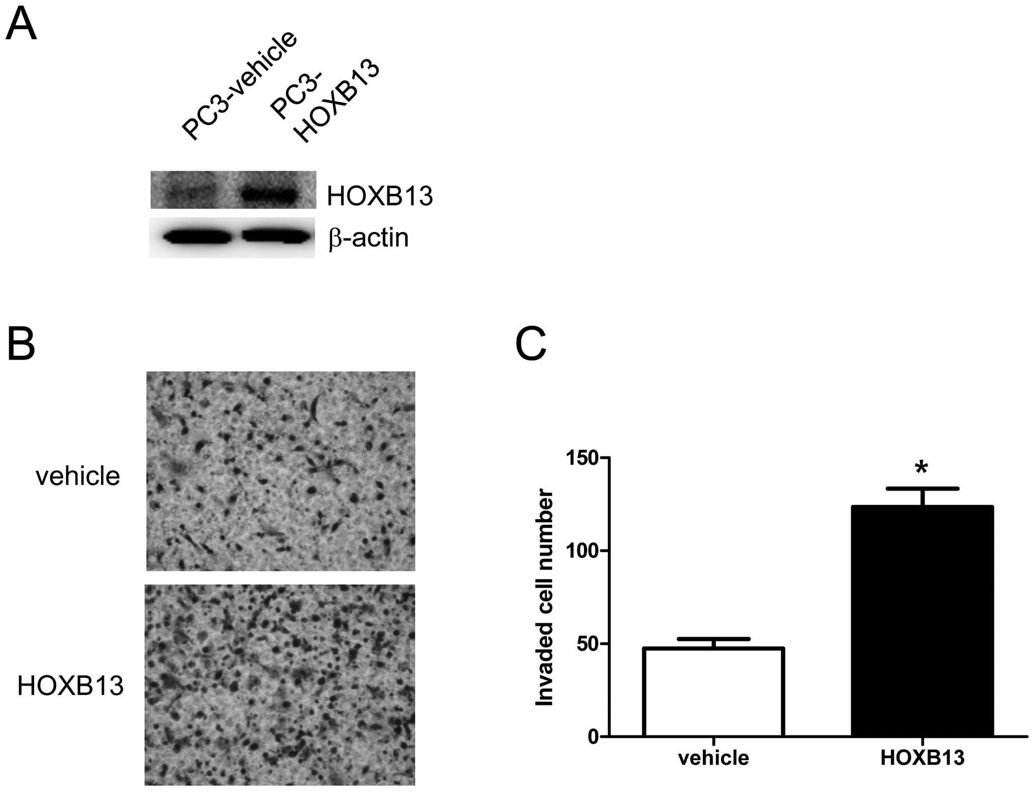 cáncer de próstata del gen hoxb13