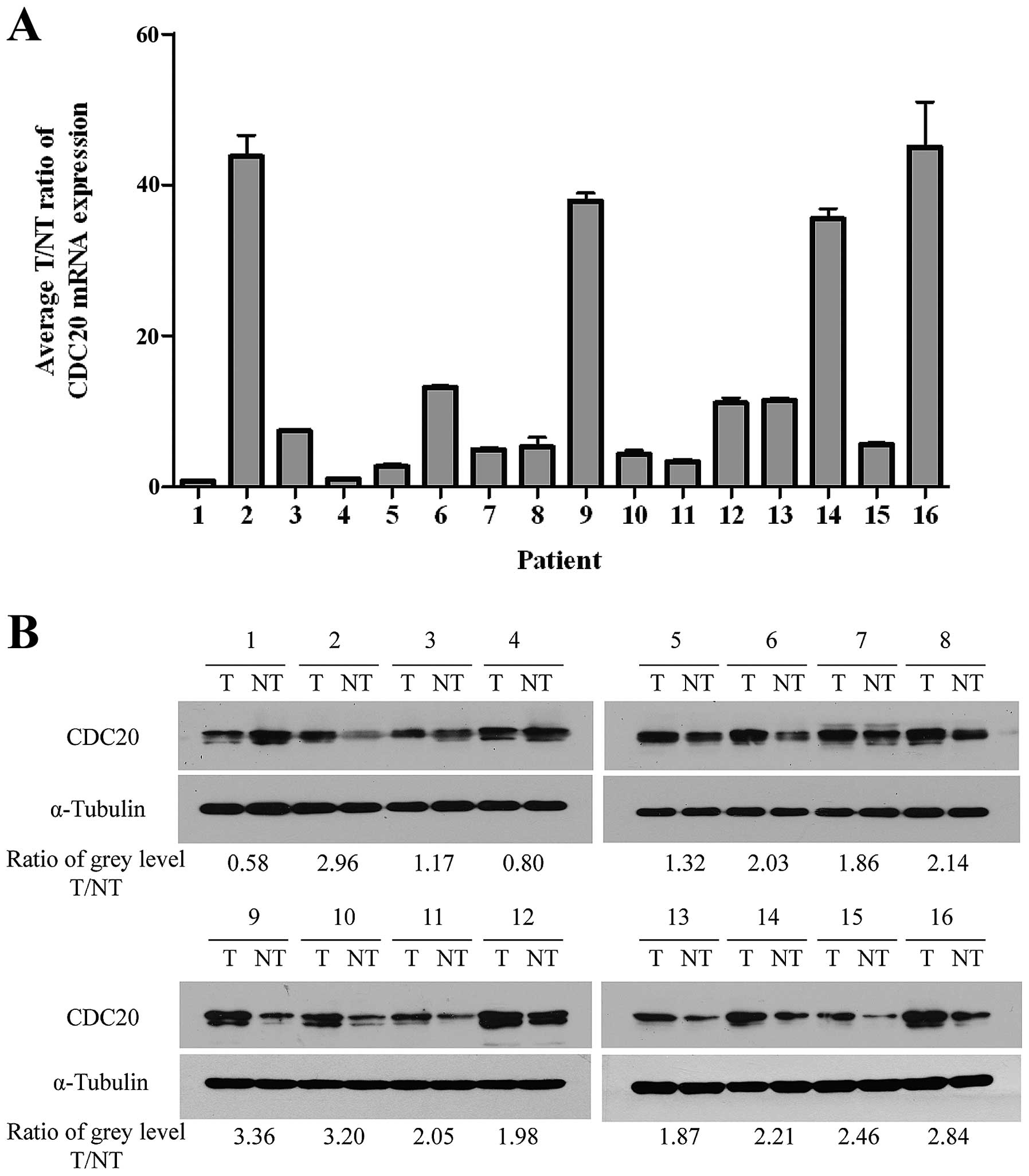 Increased CDC20 expression is associated with development and