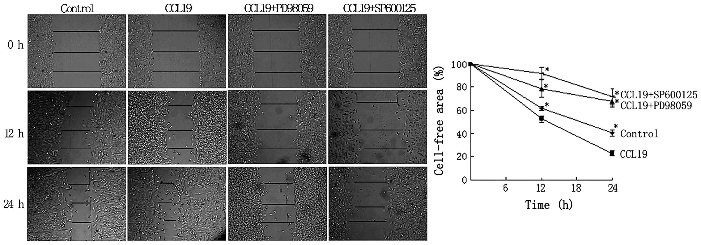CCR7 regulates cell migration and invasion through MAPKs in ...