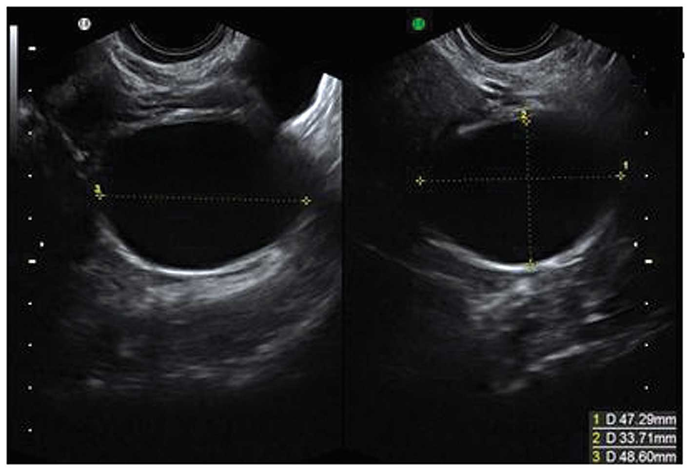 Features of abdominal ultrasound