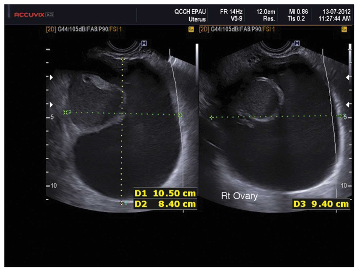 The characteristic ultrasound features of specific types of