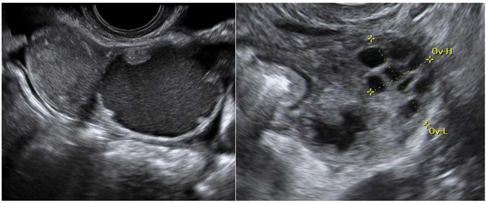 Pictures disease pelvic inflammatory