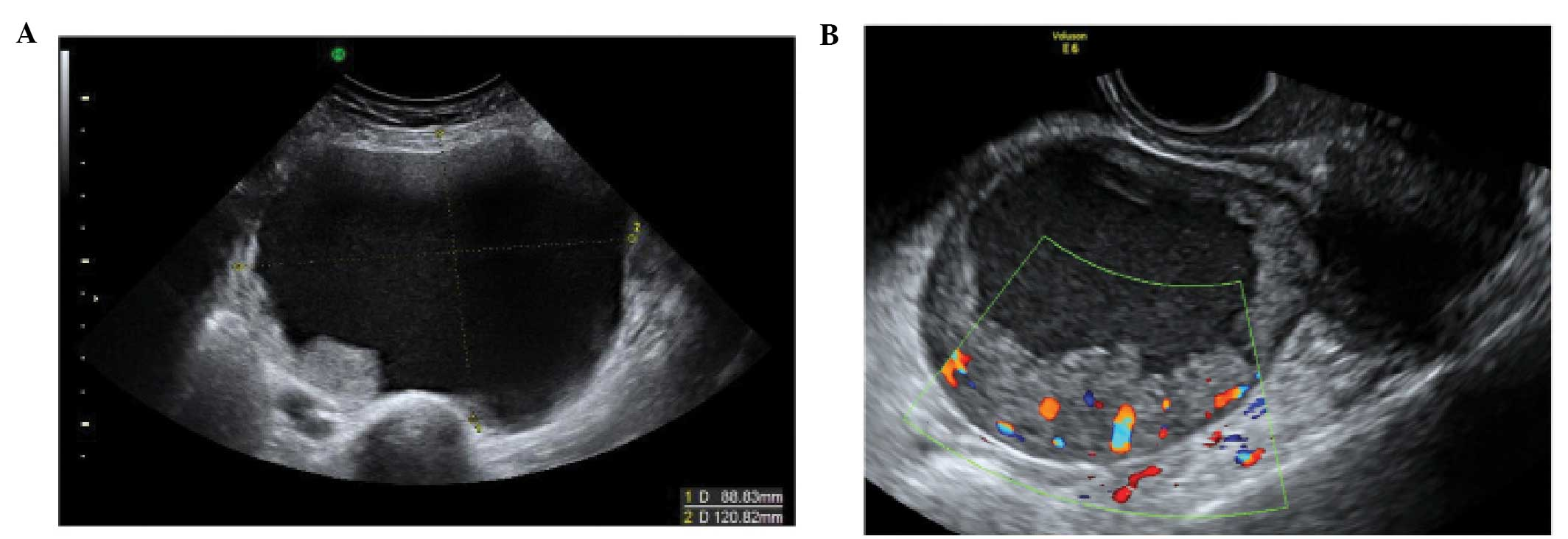 The Characteristic Ultrasound Features Of Specific Types Of Ovarian Pathology Review