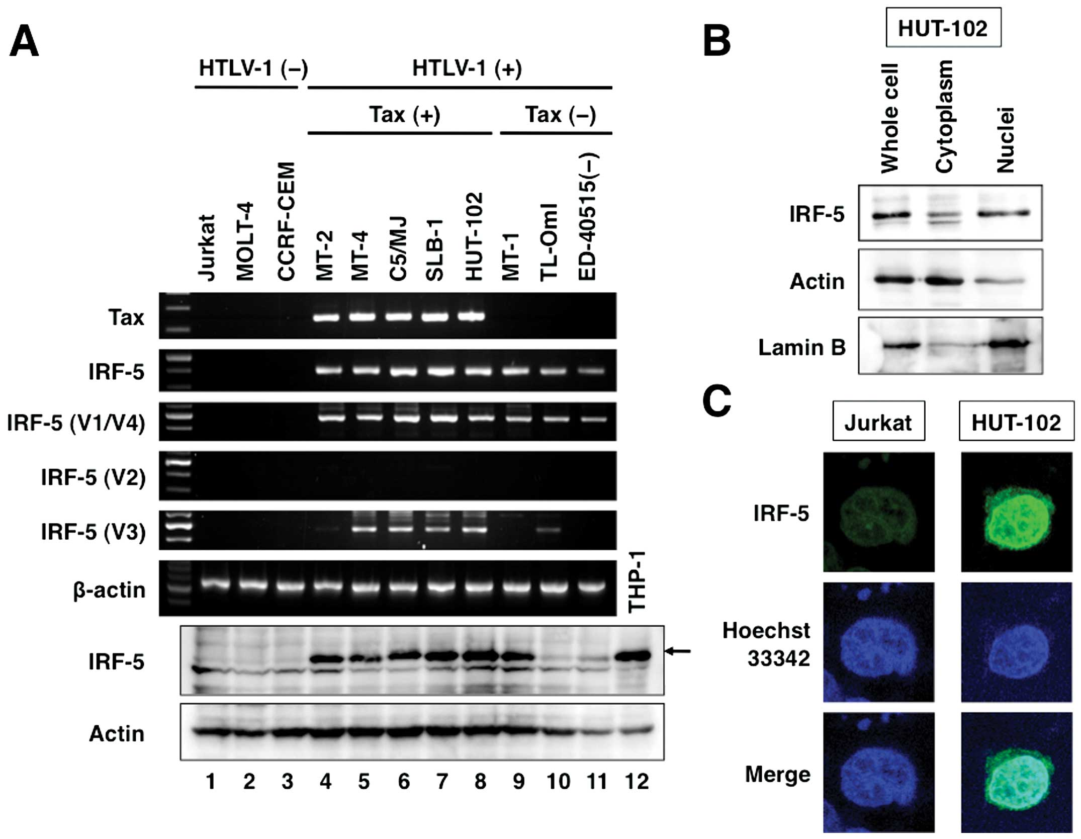 Constitutive expression of IRF-5 in HTLV-1-infected T cells