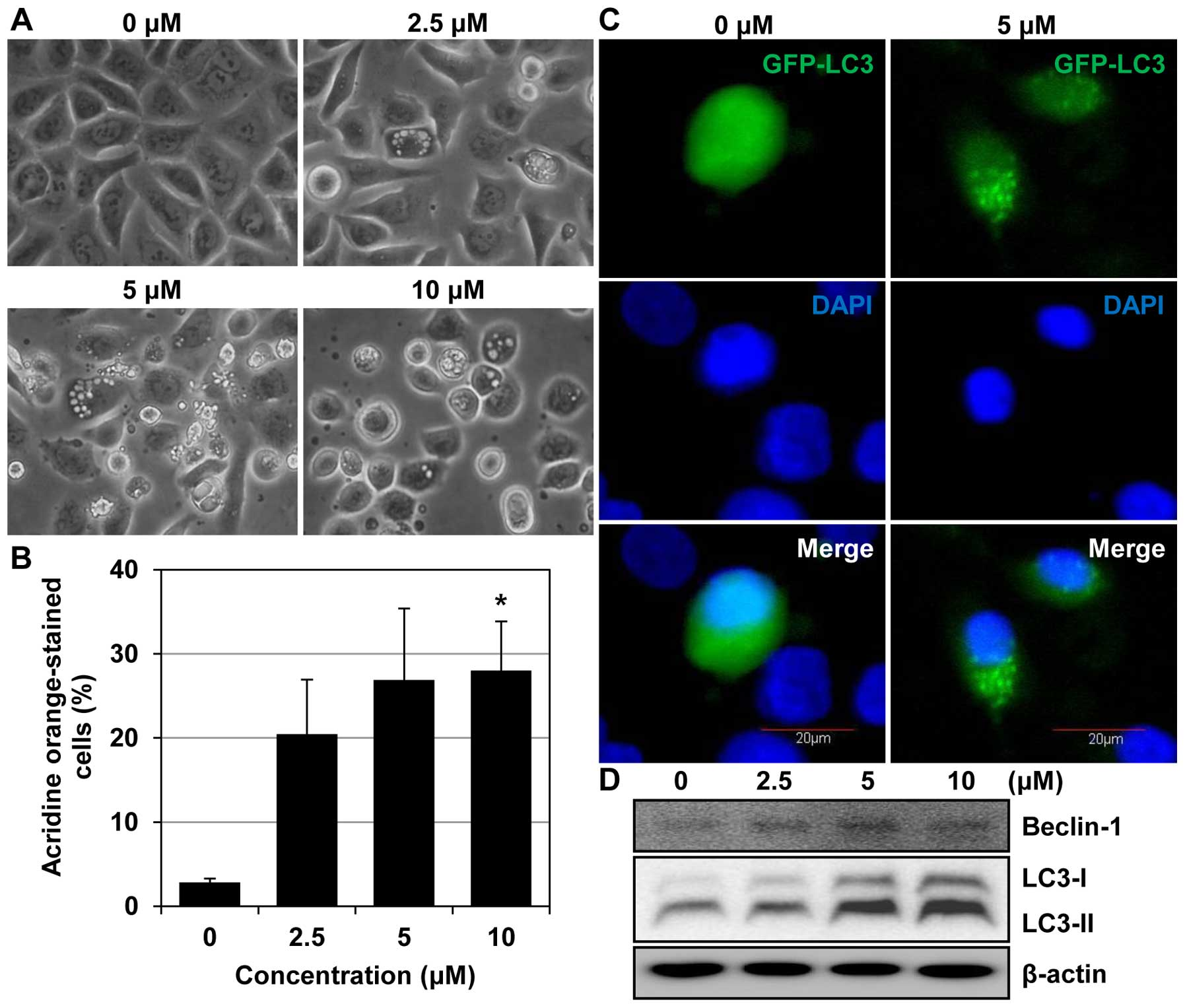 MHY218-induced apoptotic cell death is enhanced by the inhibition of