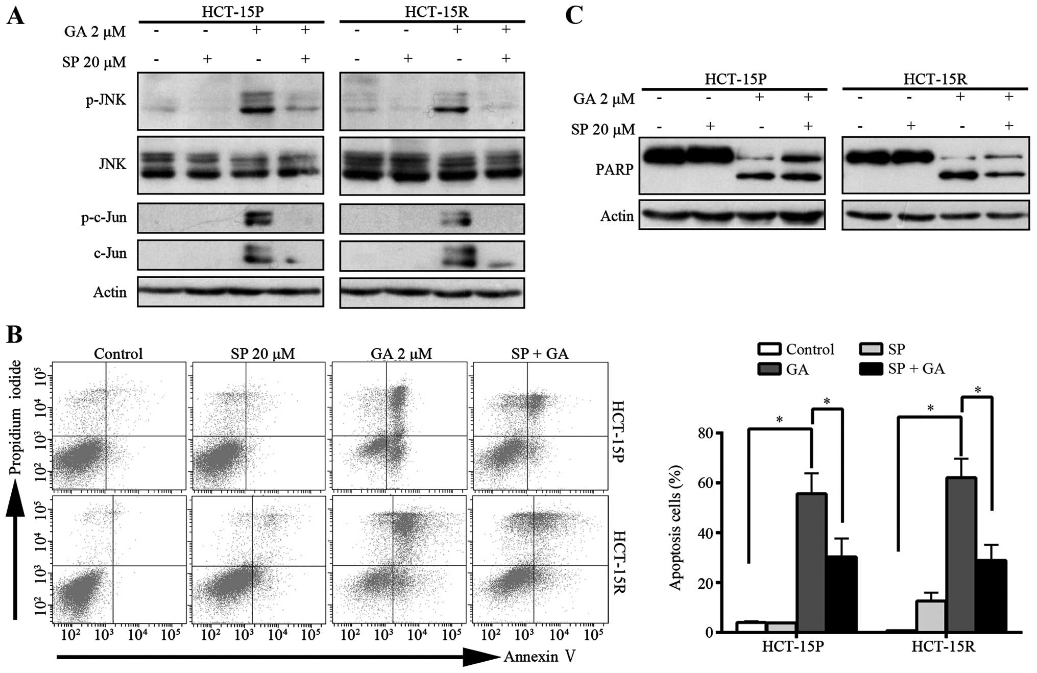 GA induces apoptosis in both GCB- and ABC-DLBCL cells. (A