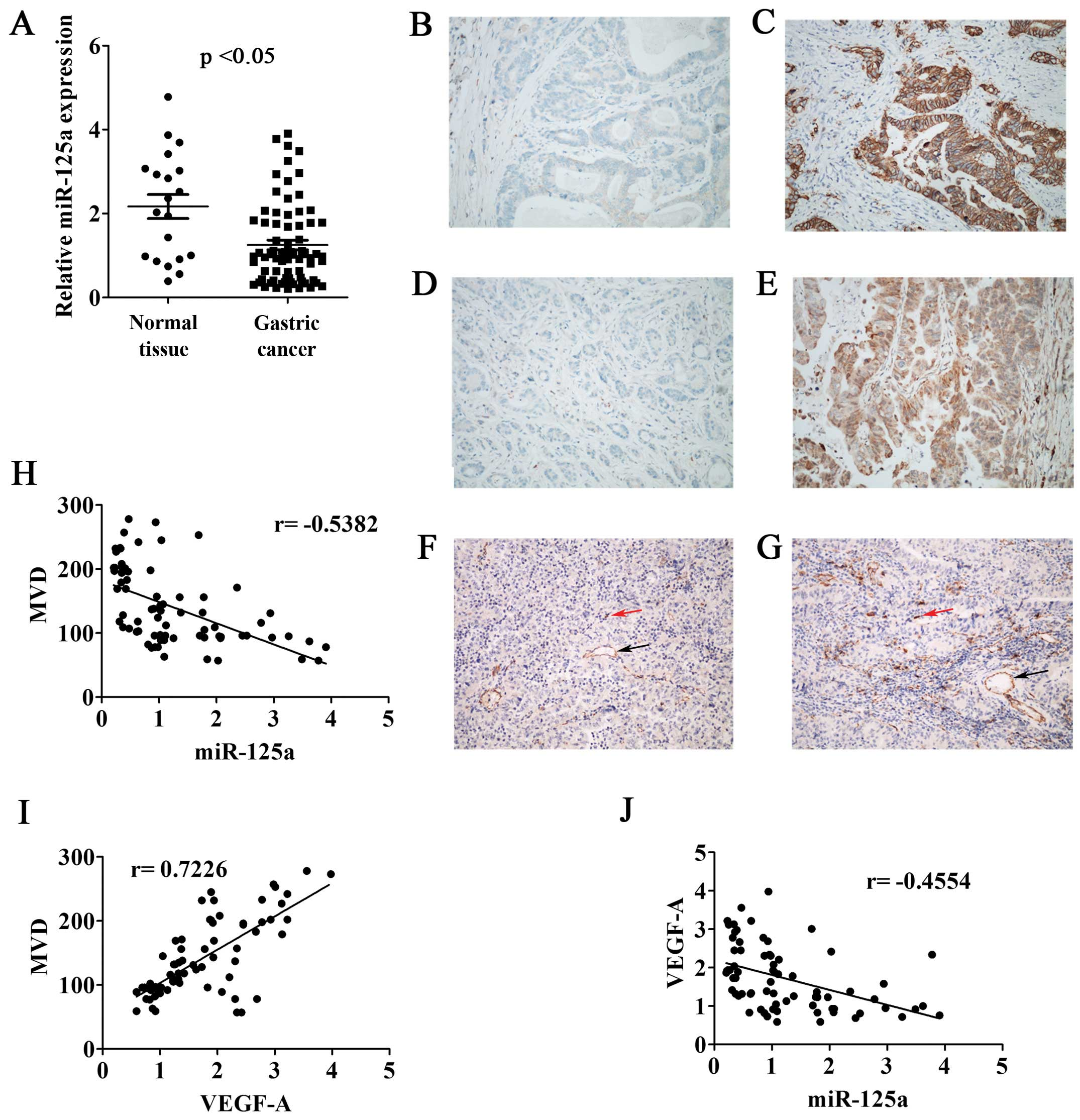 miR-125a regulates angiogenesis of gastric cancer by