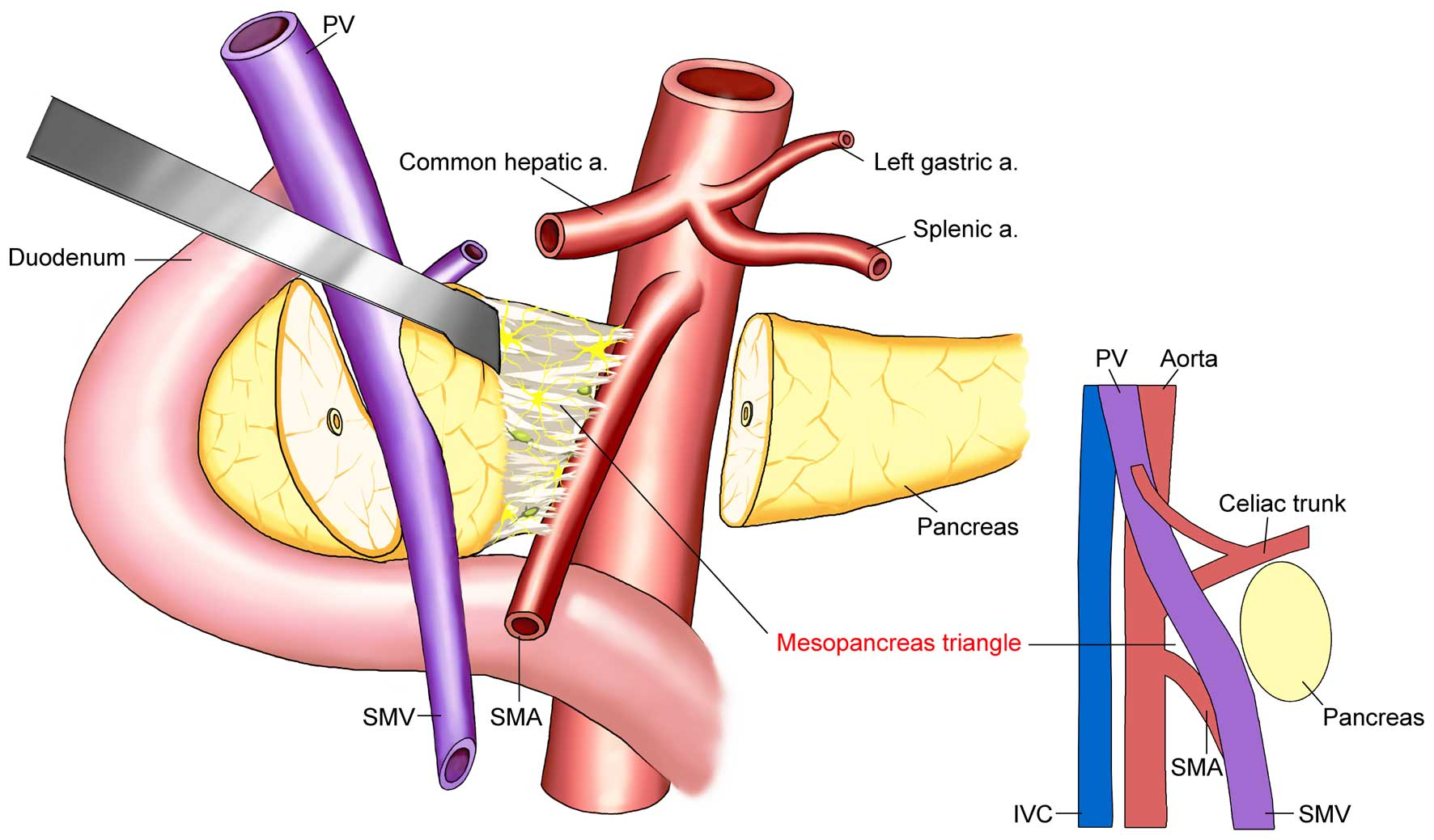 The Concept And Controversy Of Retroperitoneal Nerve Dissection In