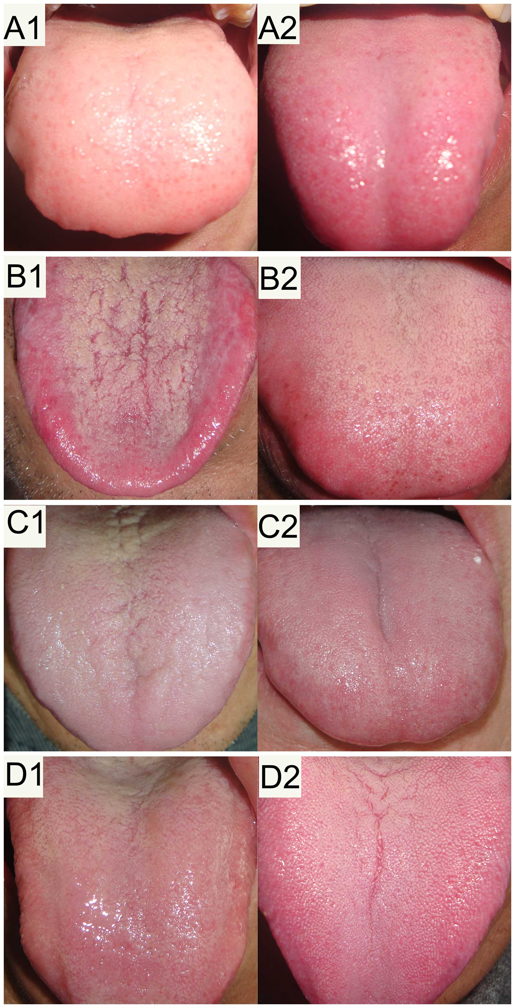 Potential screening and early diagnosis method for cancer tongue tongue images geenschuldenfo Image collections
