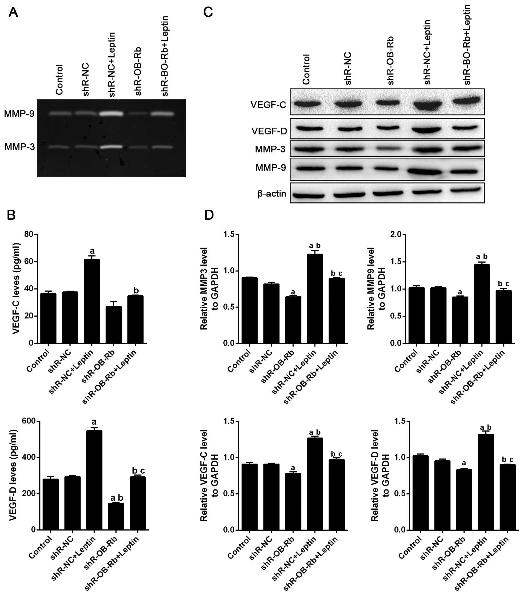 Leptin promotes proliferation and metastasis of human gallbladder