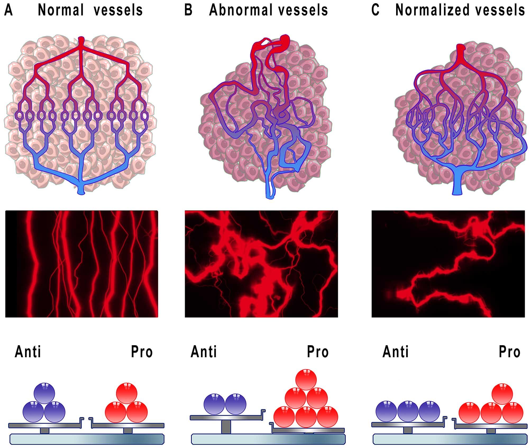 IJMS | Free Full-Text | Fibrocytes: A Novel Stromal Cells
