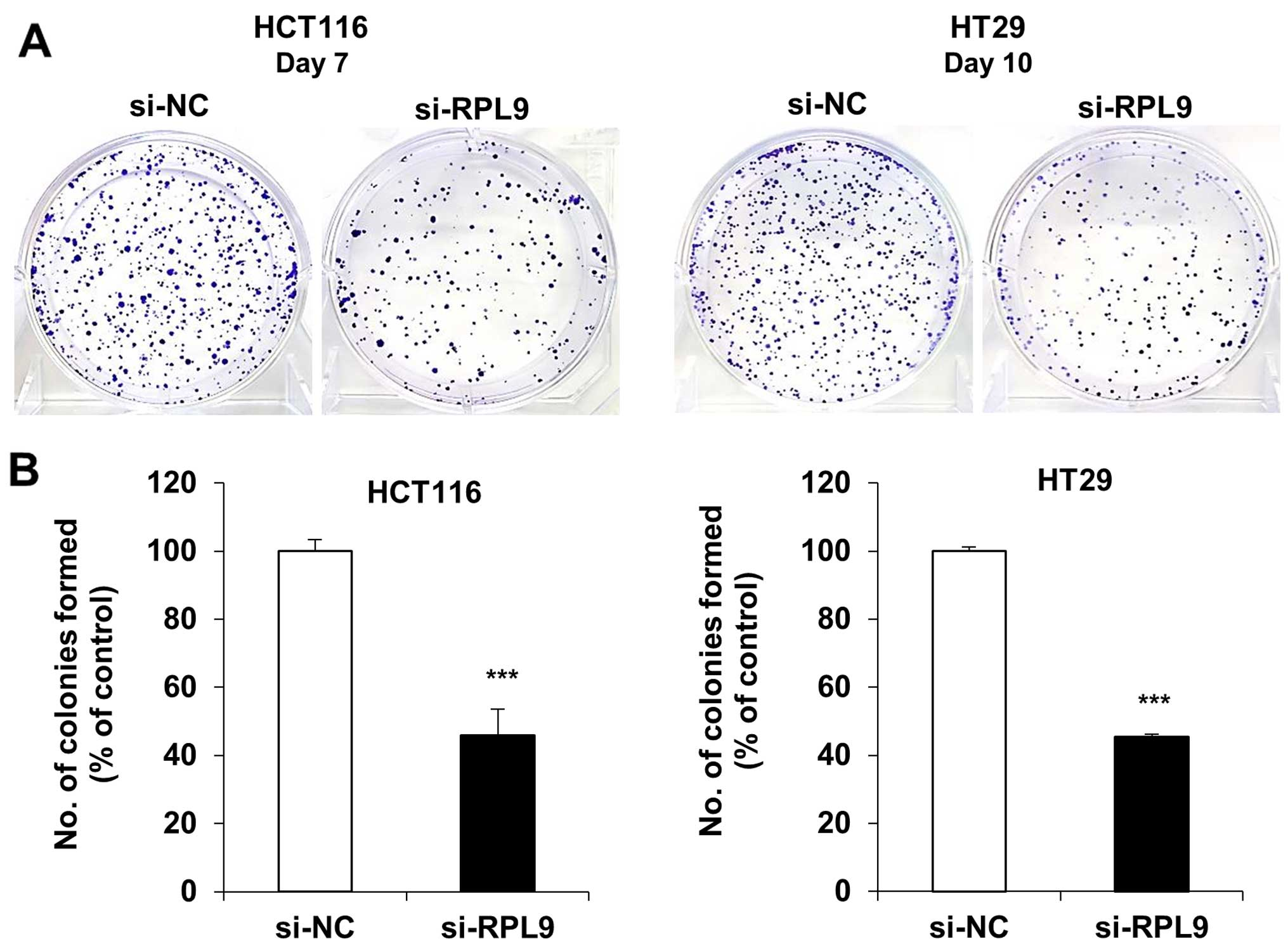Knockdown of RPL9 expression inhibits colorectal carcinoma