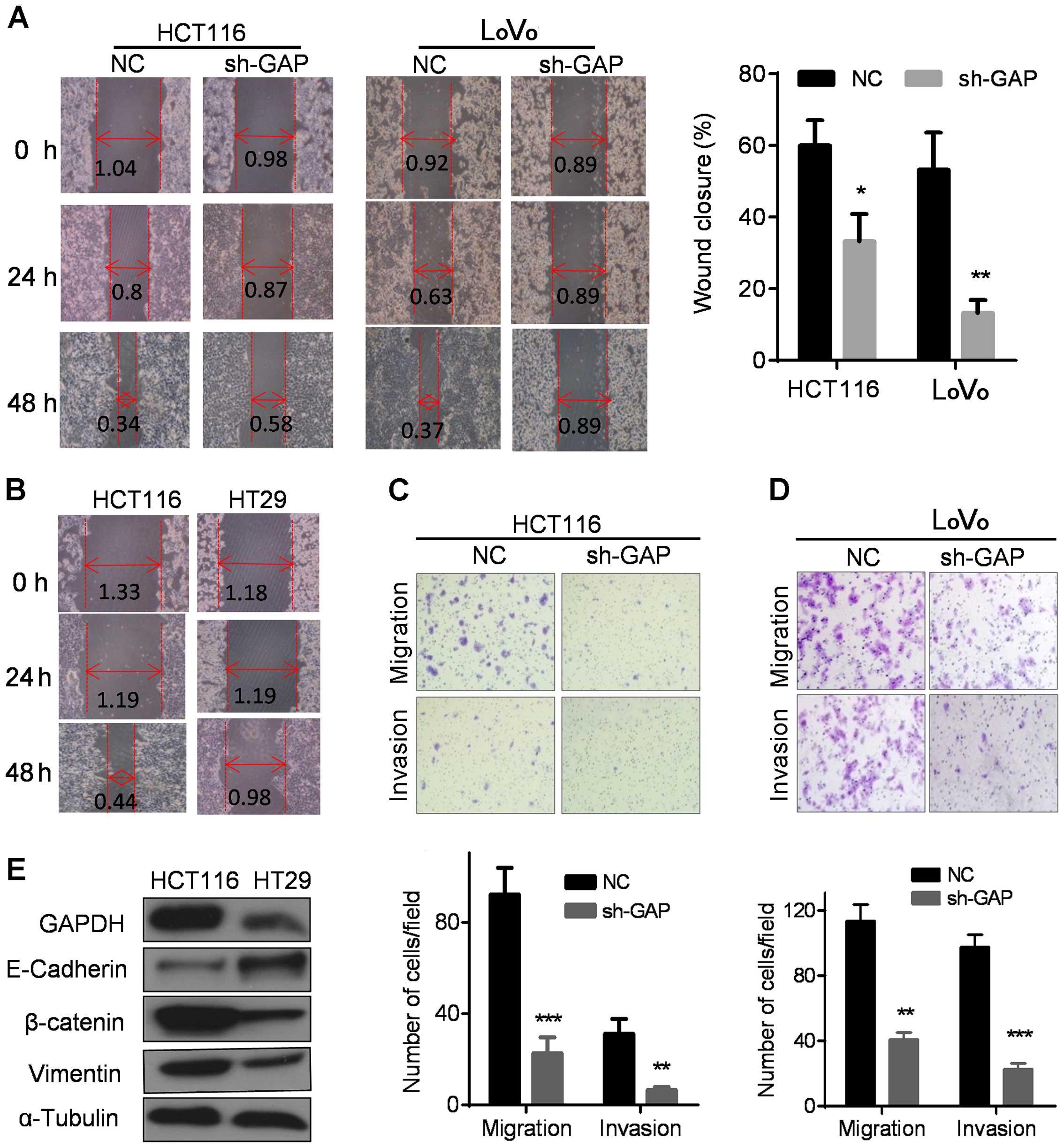 Glyceraldehyde-3-phosphate dehydrogenase promotes cancer