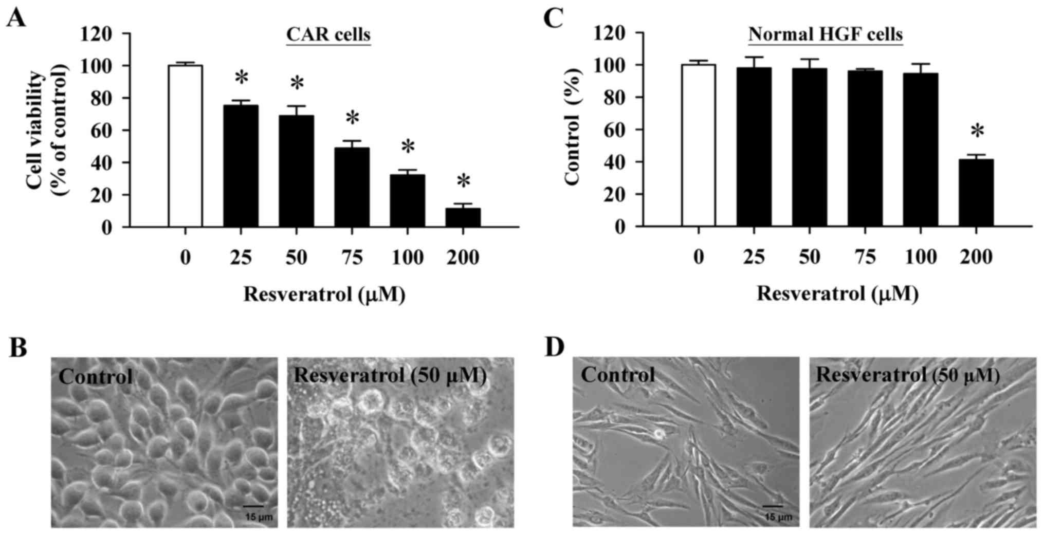 Resveratrol-induced autophagy and apoptosis in cisplatin