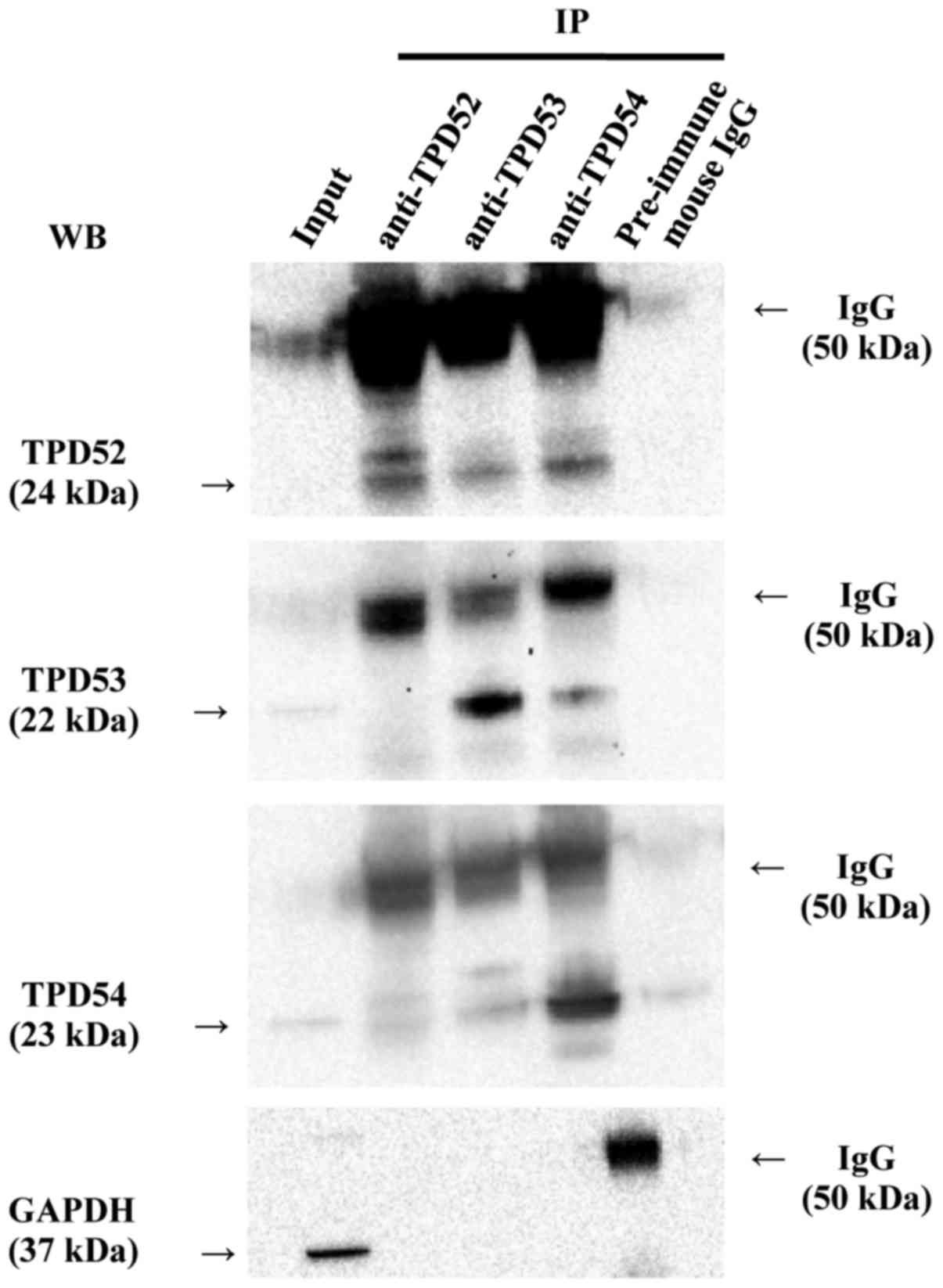 Opposite effects of tumor protein D (TPD) 52 and TPD54 on oral