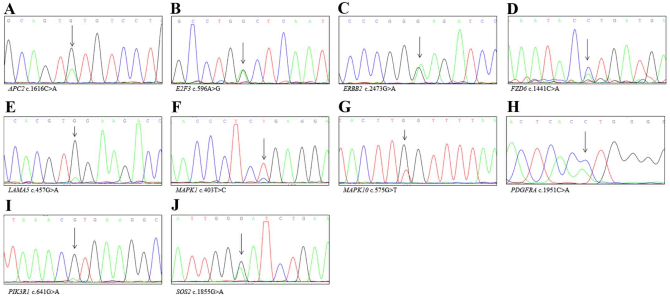 Identification Of Novel Mutations In Endometrial Cancer Patients By One Nine Sequencer Confirmatory Analysis Sanger Sequencing Kegg Pathway Hsa05200 Detected Via Wes A Apc2 B E2f3 C Erbb2 D Fzd6 E Lama5