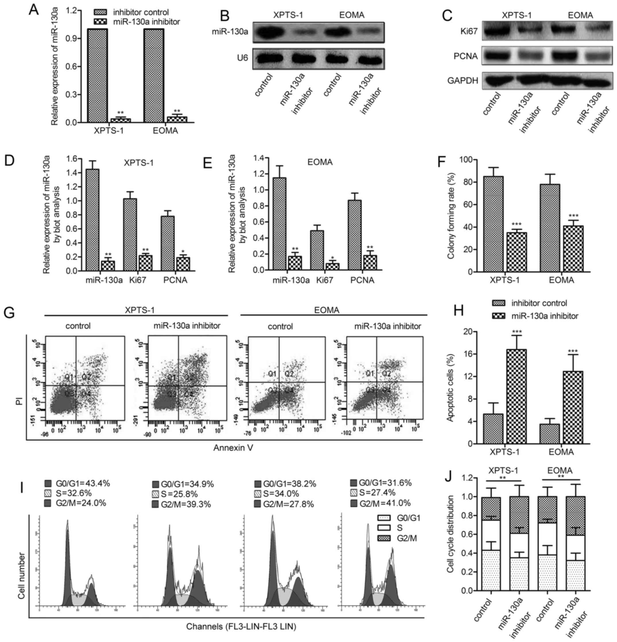 Epigenetic silencing of miR-130a ameliorates hemangioma by