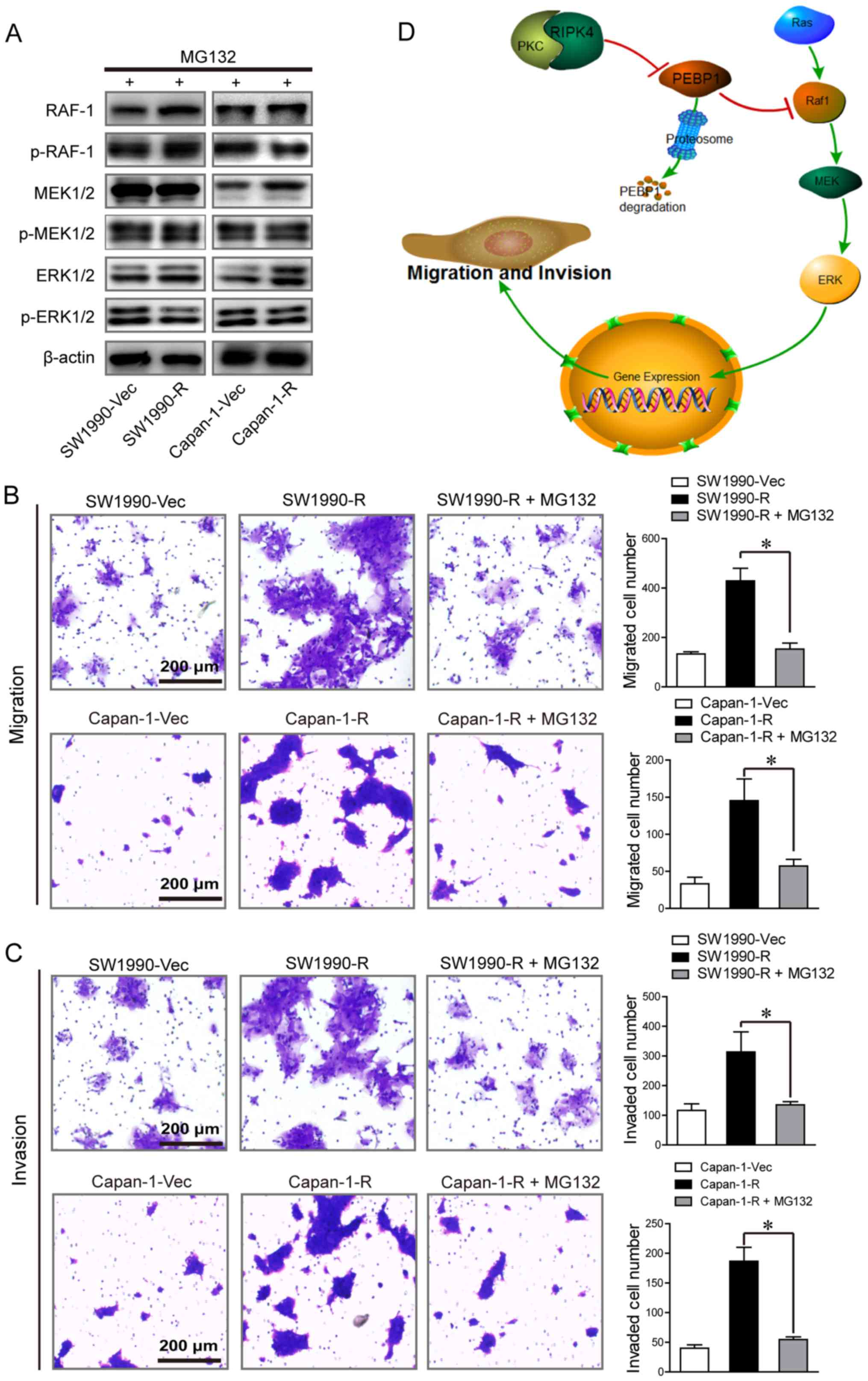 RIPK4/PEBP1 axis promotes pancreatic cancer cell migration and