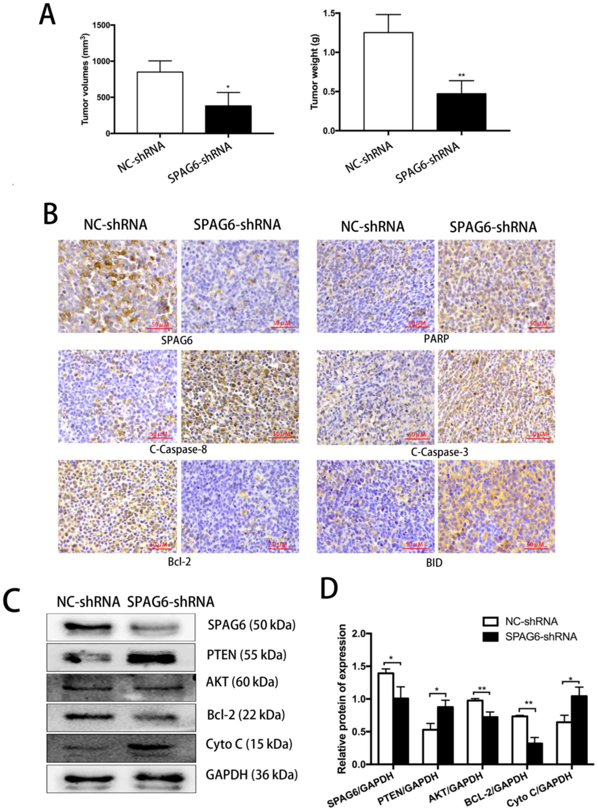 SPAG6 silencing induces apoptosis in the myelodysplastic