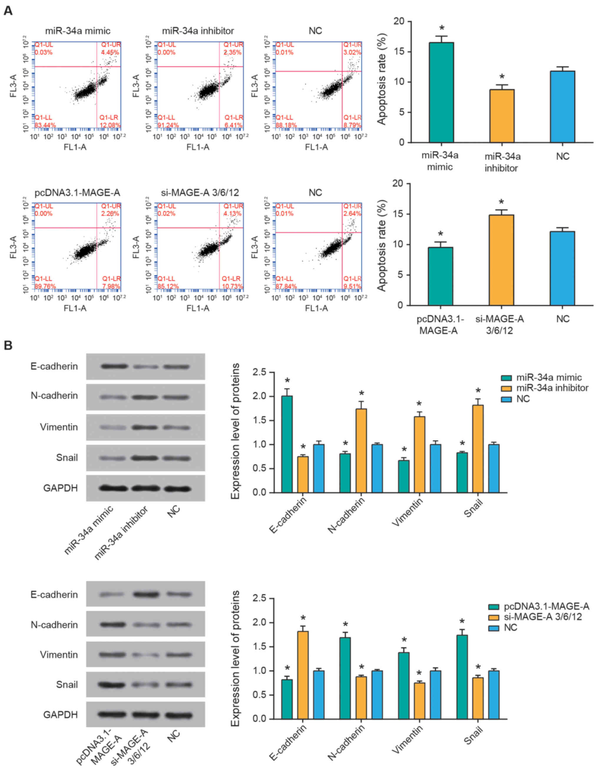 miR‑34a regulates the chemosensitivity of retinoblastoma