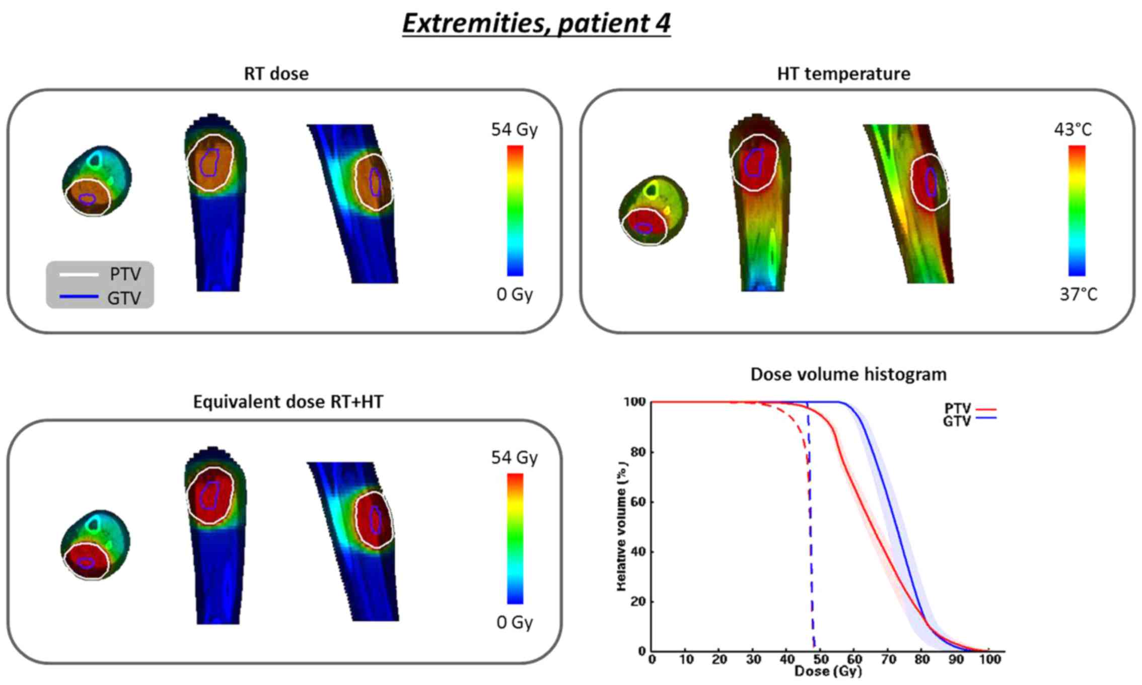 Re‑irradiation plus hyperthermia for recurrent pediatric
