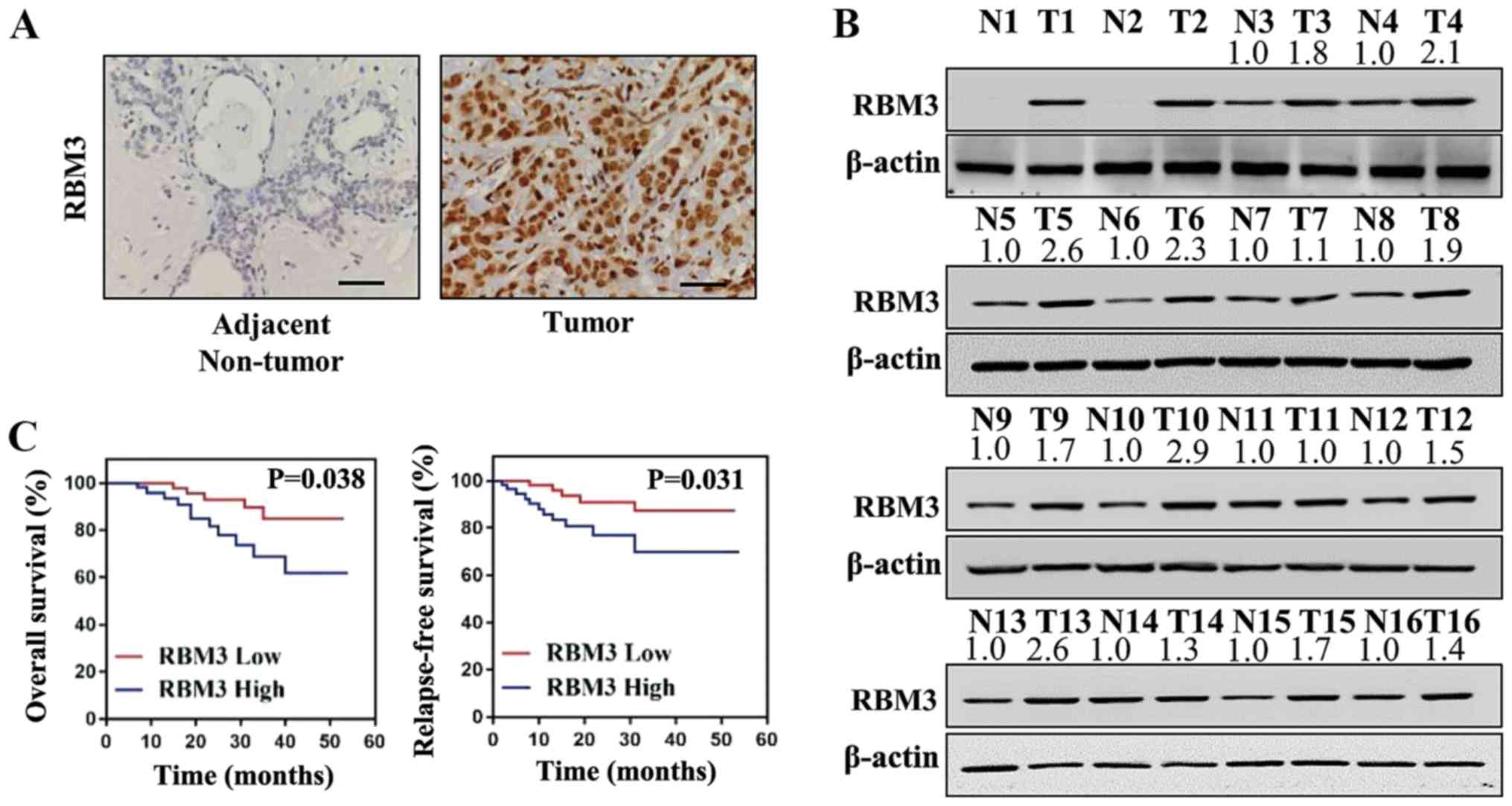 RBM3 upregulates ARPC2 by binding the 3'UTR and contributes
