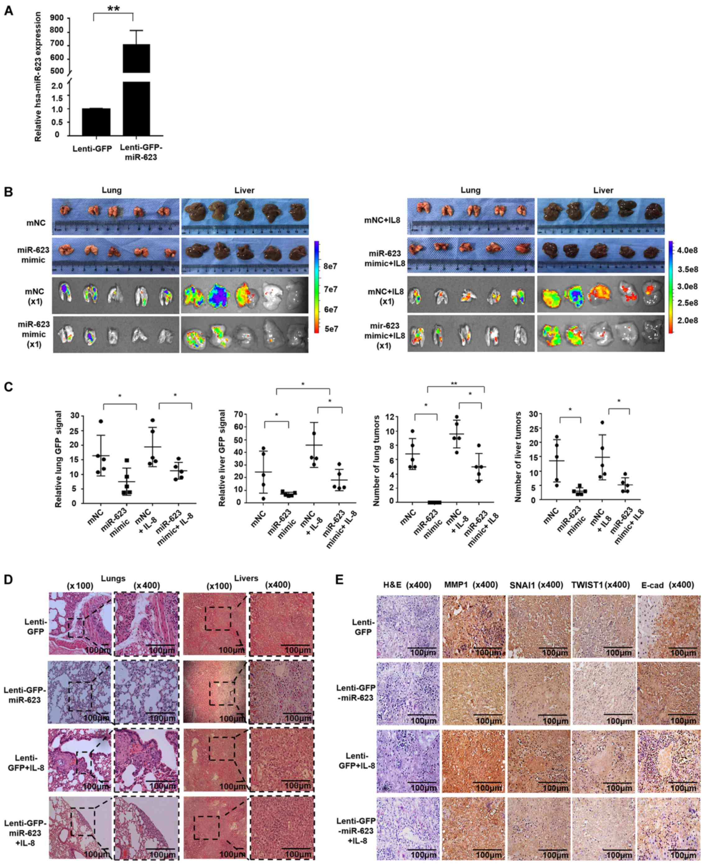 pancreatic cancer zinc)