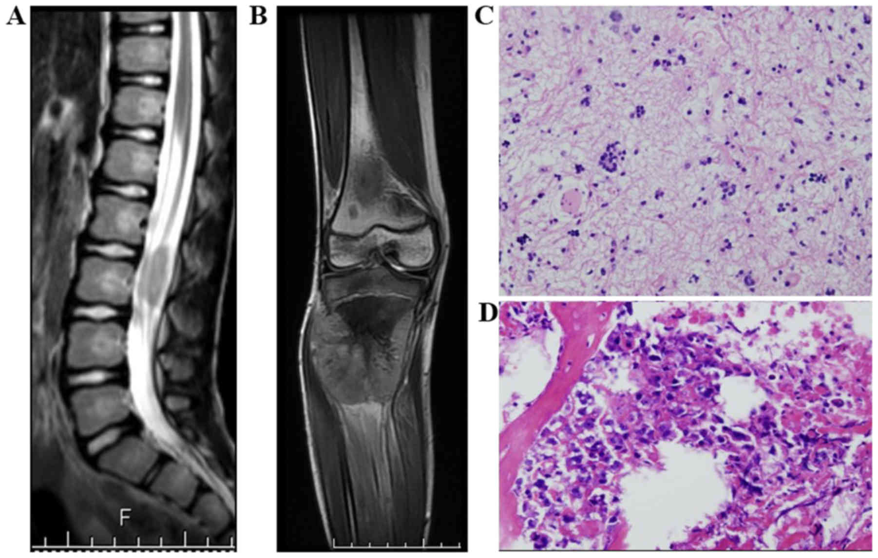 Secondary osteosarcoma in patients previously treated for