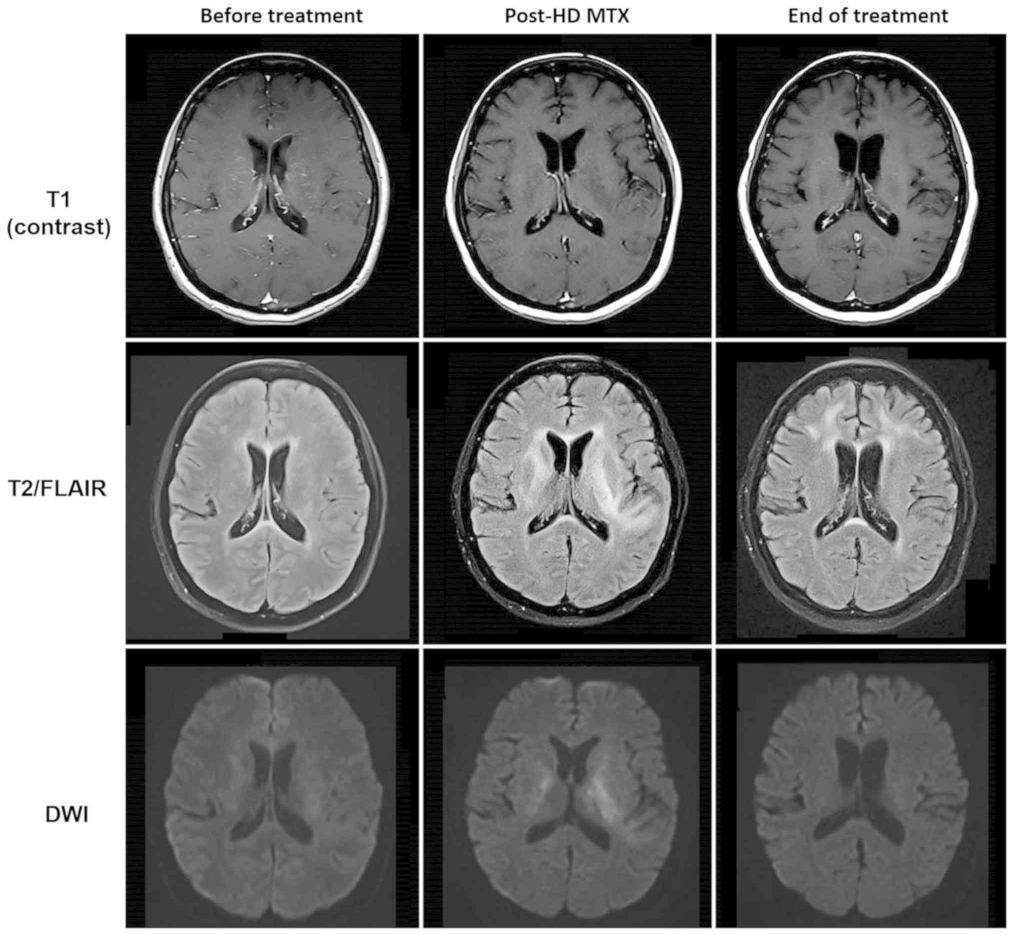 neurontin on drug test