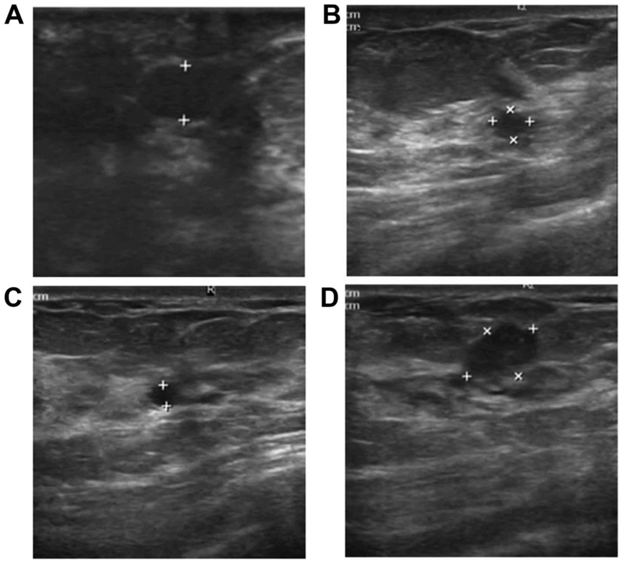 Varicele reticular că, Reticulated papillomatosis causes Intraductal papilloma frequency