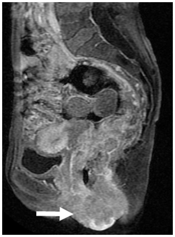prostate cancer rectal invasion